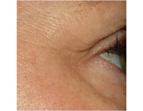 After_Plasma Pen - Enhance Skin and Brow - Plasma Pen Treatment in Bellevue and Seattle WA