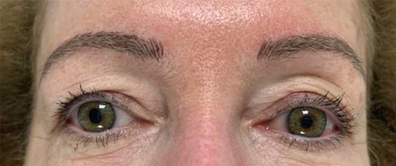After microblading picture Enhance Skin and Brow