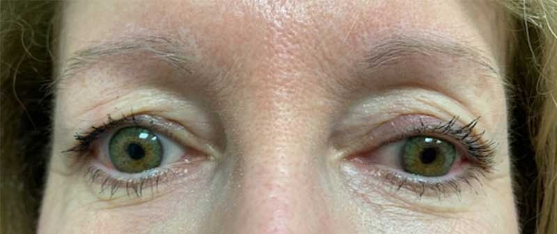 Before picture microblading Enhance Skin and Brow