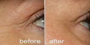 Difference between Microneedling versus Plasma Pen_Enhance Skin and Brow