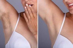 Enhance Skin and Brow Intense Pulse Light IPL for armpit