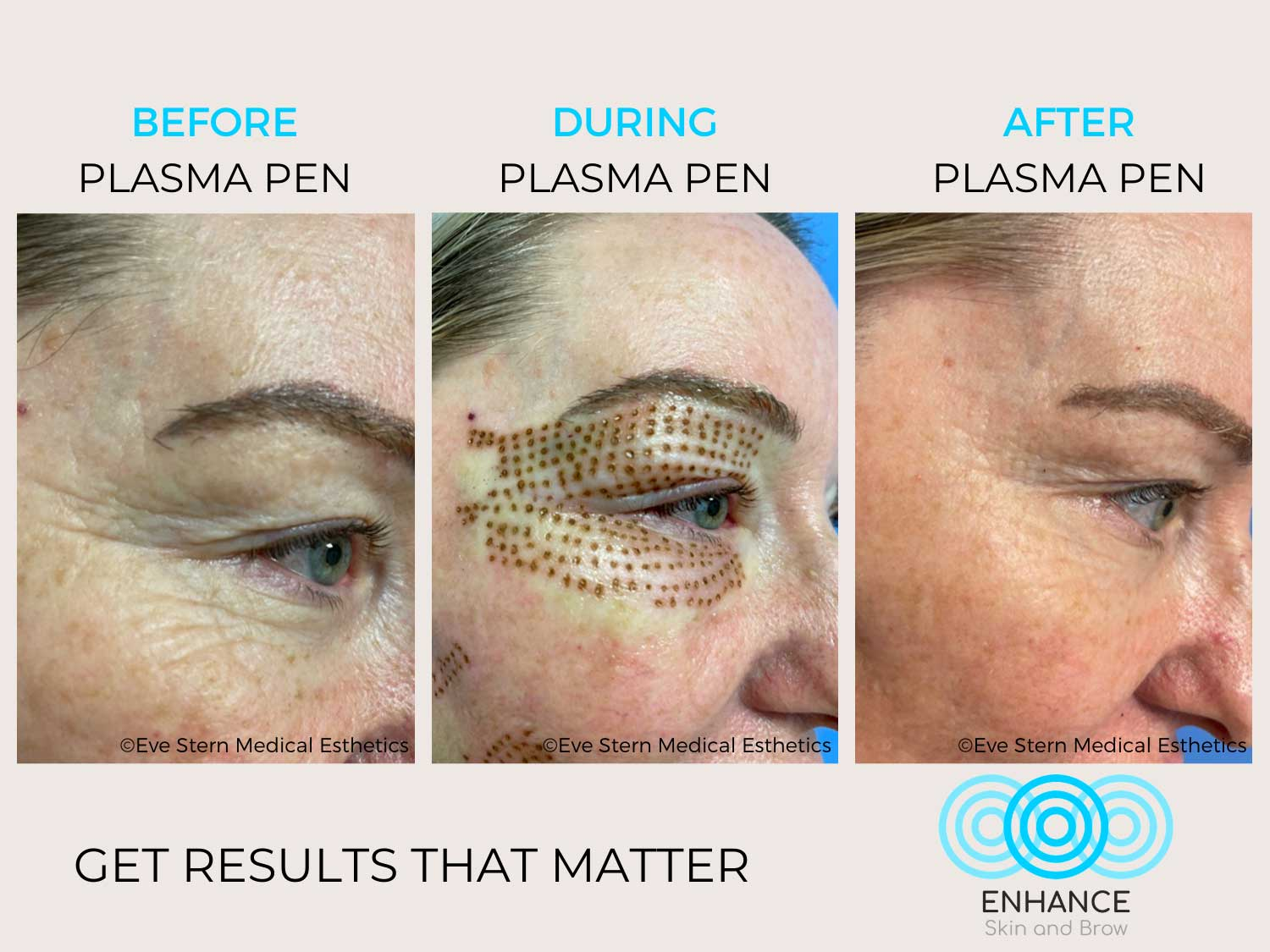 before after plasma pen eyes enhance skin and brow