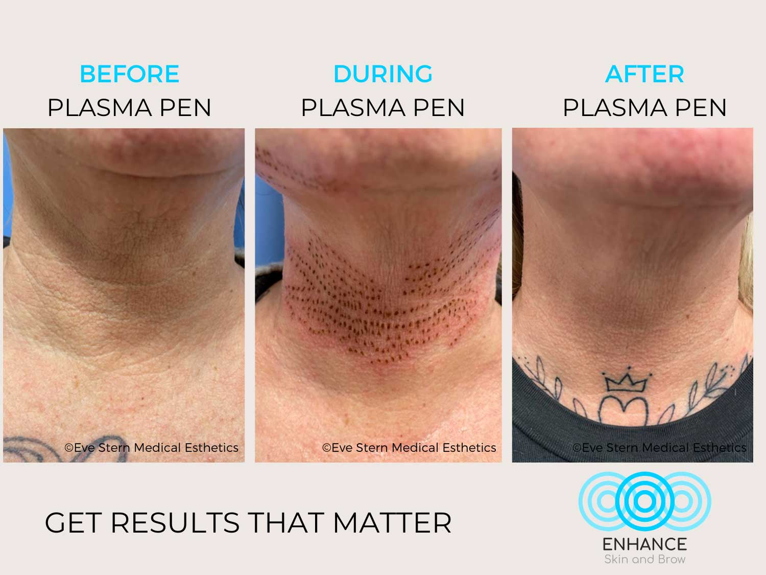 before after plasma pen neck eyes enhance skin and brow